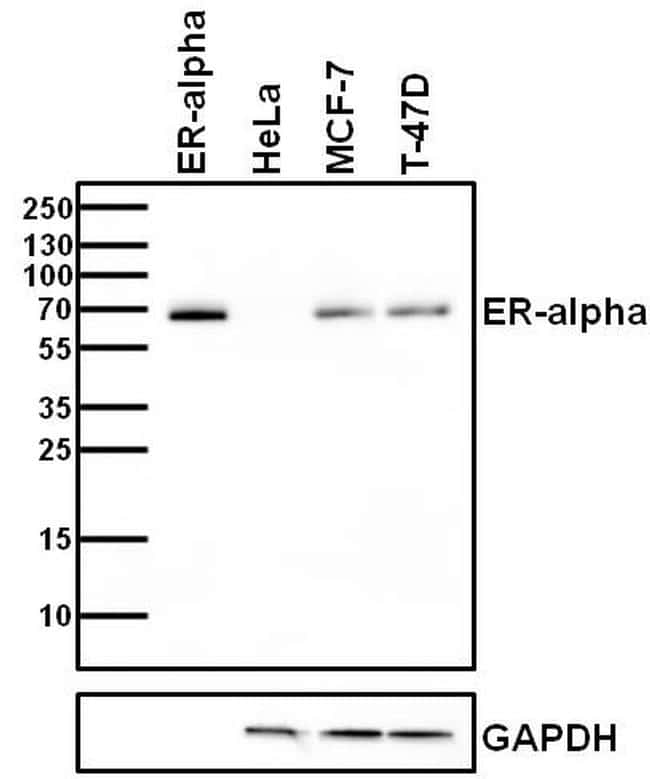 Estrogen Receptor alpha Antibody in Relative expression
