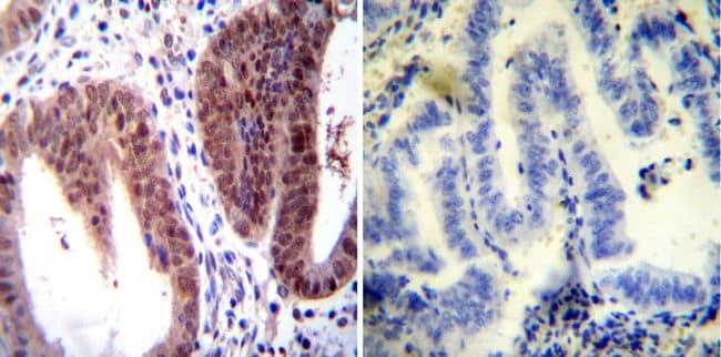 Estrogen Receptor alpha Antibody in Immunohistochemistry (IHC)