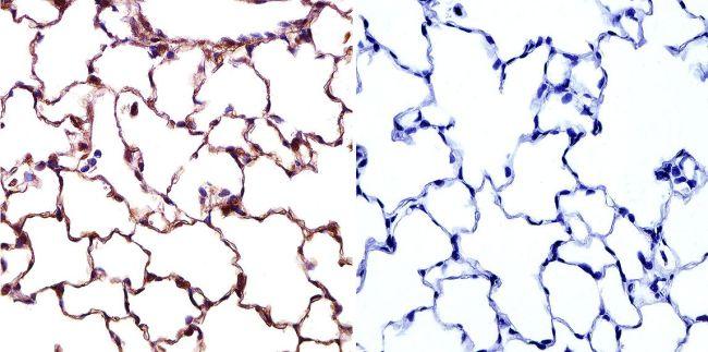 Caveolin 1 Antibody in Immunohistochemistry (IHC)