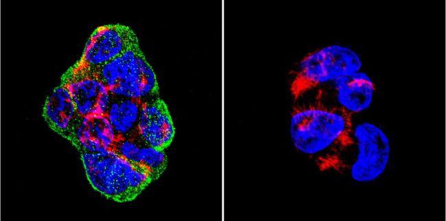Vimentin Antibody in Immunofluorescence (IF)