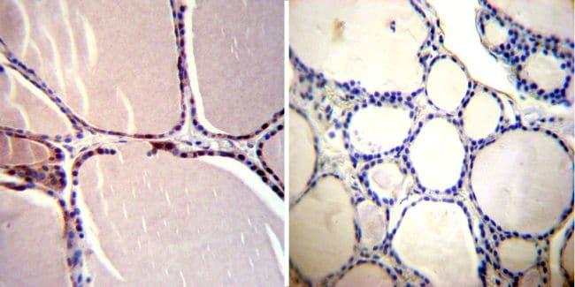 CRABP1 Antibody in Immunohistochemistry (IHC)