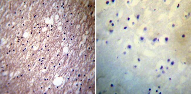 HCN3 Antibody in Immunohistochemistry (IHC)
