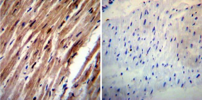 HCN4 Antibody in Immunohistochemistry (IHC)