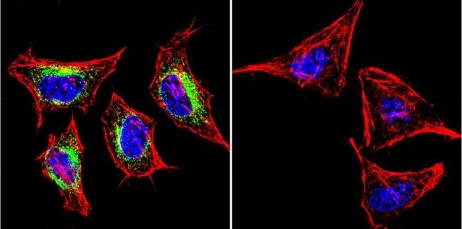 SERCA2 ATPase Antibody in Immunofluorescence (IF)