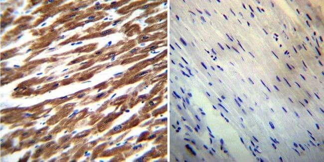 SERCA2 ATPase Antibody in Immunohistochemistry (IHC)