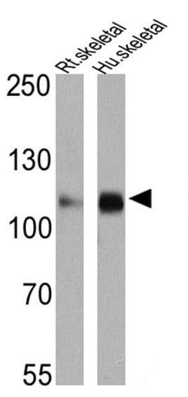 SERCA2 ATPase Antibody in Western Blot (WB)