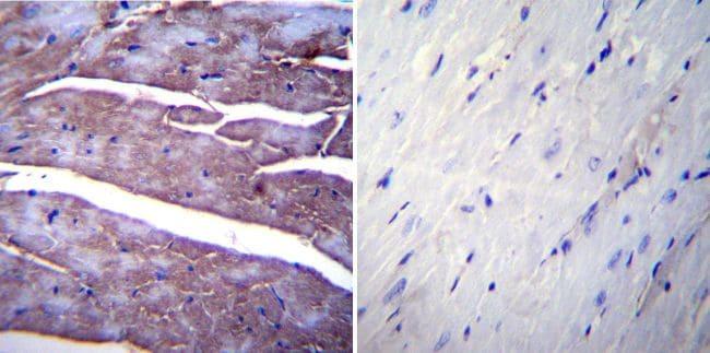 SERCA1 ATPase Antibody in Immunohistochemistry (IHC)