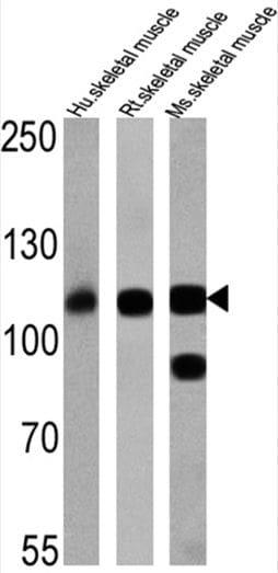 SERCA1 ATPase Antibody in Western Blot (WB)