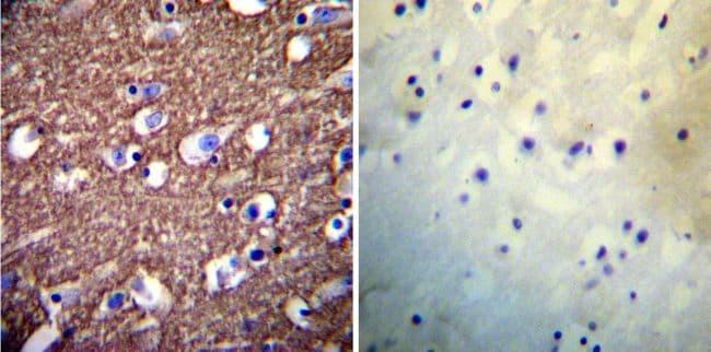 PMCA ATPase Antibody in Immunohistochemistry (IHC)