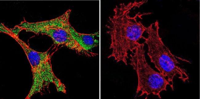 Calmodulin Antibody in Immunofluorescence (IF)