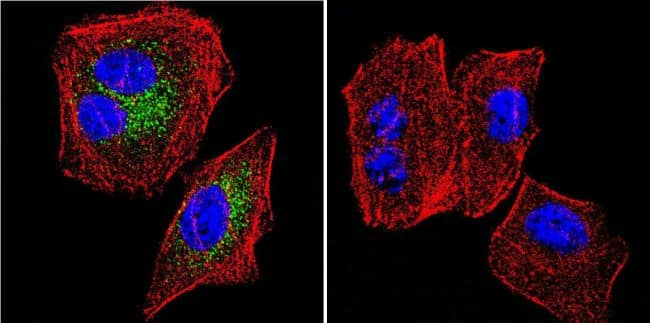 SERCA2 ATPase Antibody in Immunofluorescence (IF)