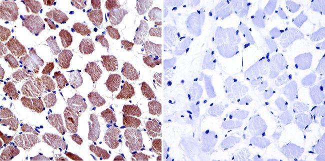 CACNA2D1 Antibody in Immunohistochemistry (IHC)