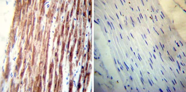 Phospholamban Antibody in Immunohistochemistry (IHC)