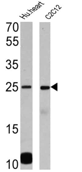 Phospholamban Antibody in Western Blot (WB)