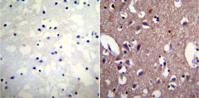 ATP1A1 Antibody in Immunohistochemistry (IHC)