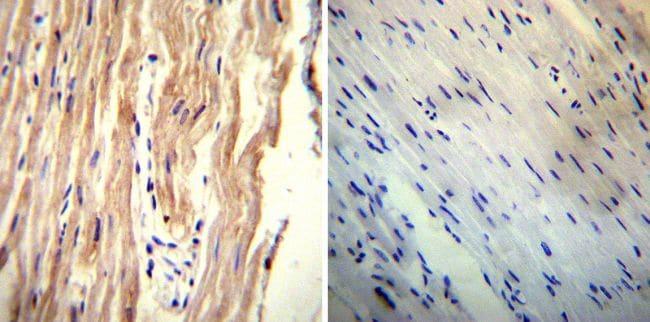 Sodium/Calcium Exchanger Antibody in Immunohistochemistry (IHC)
