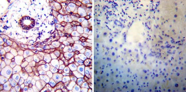 ATP1B1 Antibody in Immunohistochemistry (IHC)