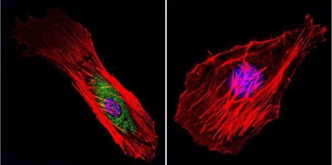 Mu-Calpain Antibody in Immunofluorescence (IF)