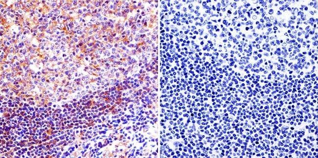 Mu-Calpain Antibody in Immunohistochemistry (IHC)