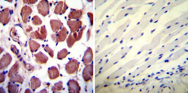 Calpastatin Antibody in Immunohistochemistry (IHC)