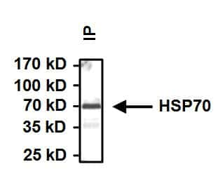HSP70 Antibody in Immunoprecipitation (IP)