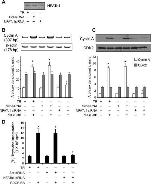 NFATC1 Antibody