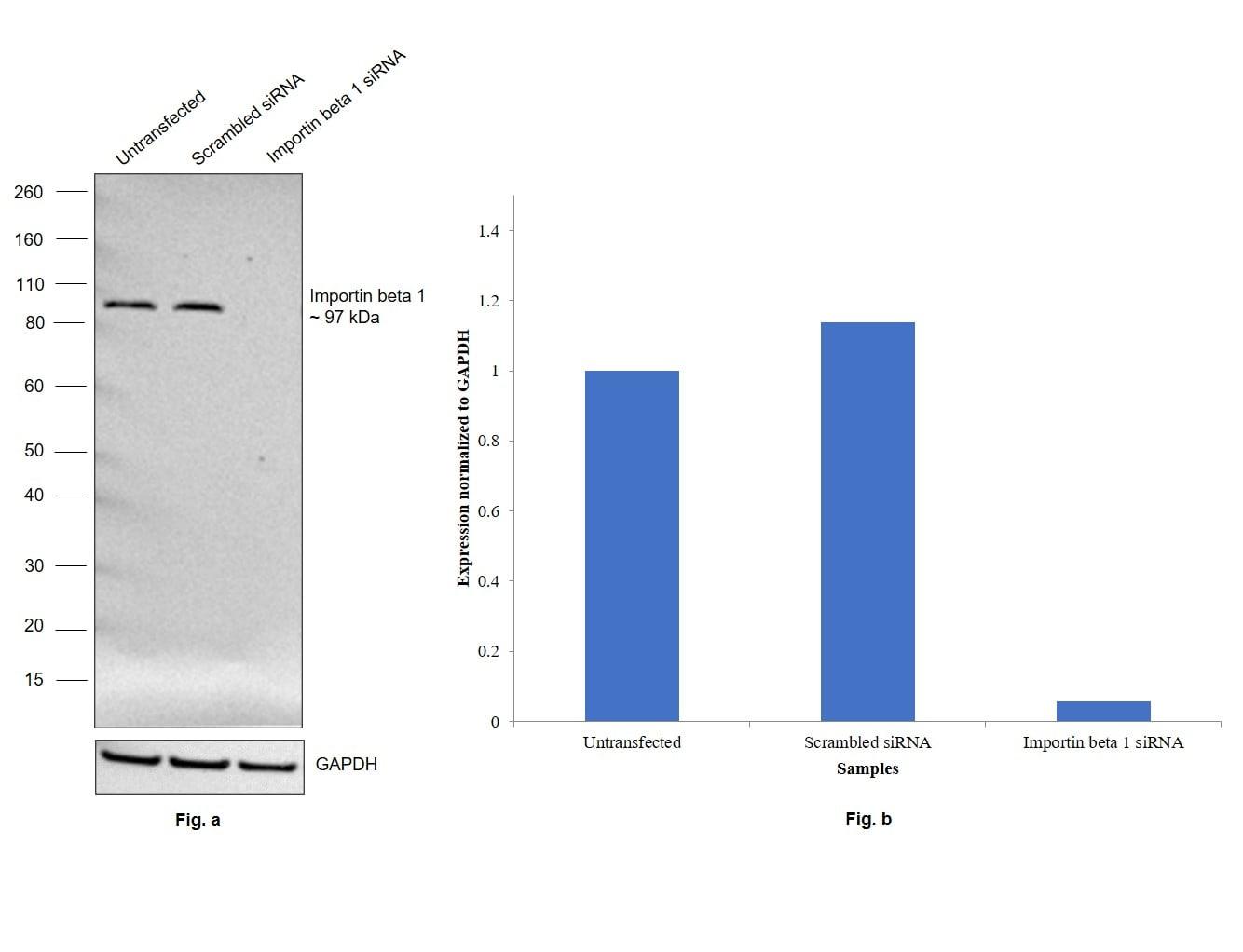 Importin beta-1 Antibody in Western Blot (WB)