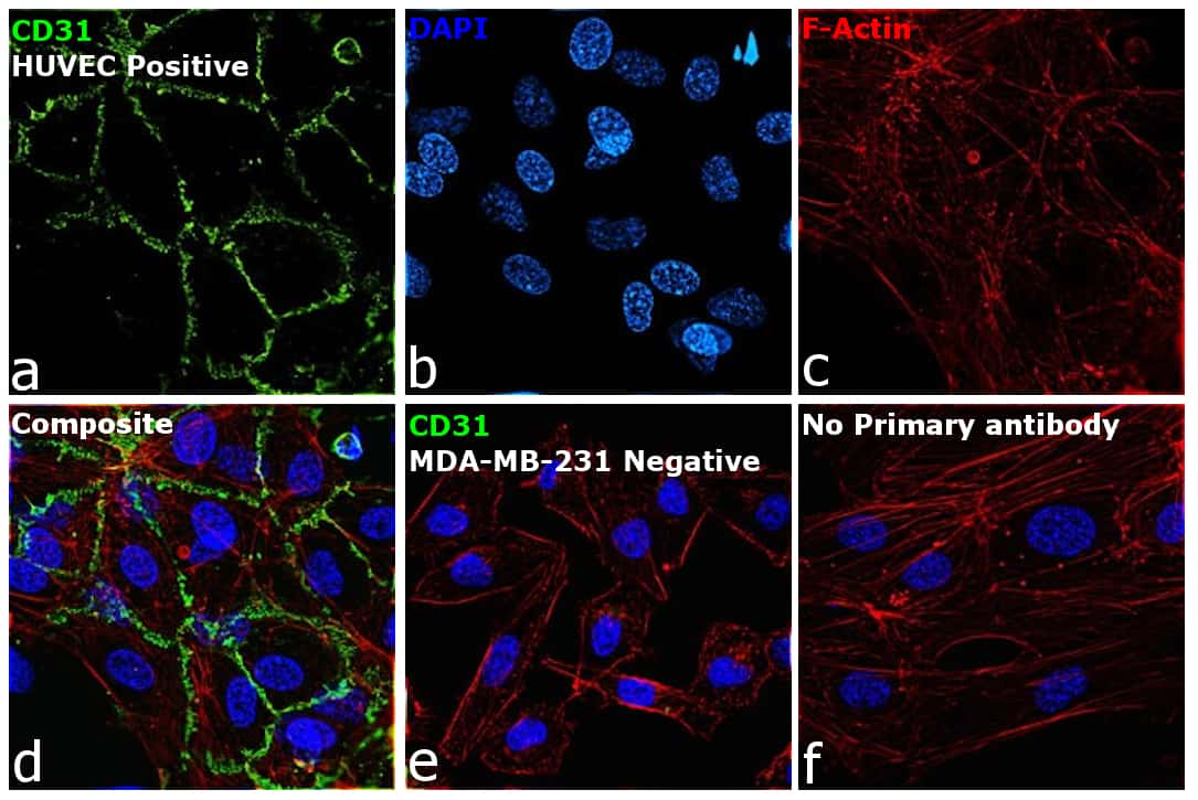 CD31 Antibody in Immunocytochemistry (ICC)