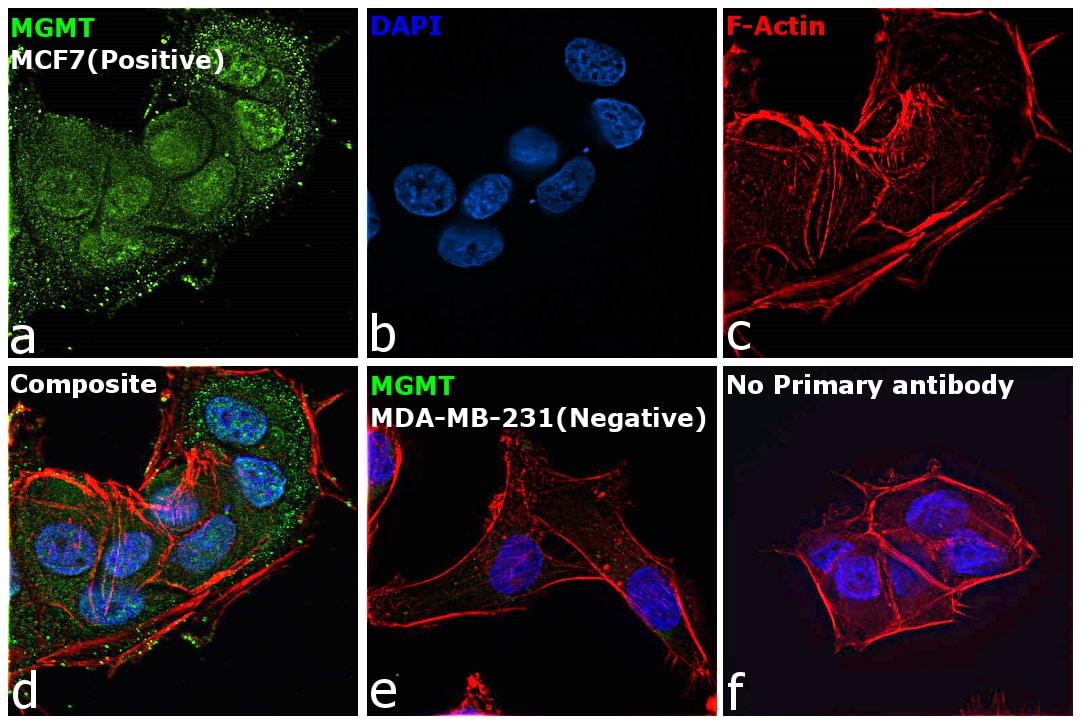 MGMT Antibody in Immunocytochemistry (ICC/IF)