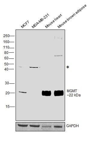 MGMT Antibody in Western Blot (WB)