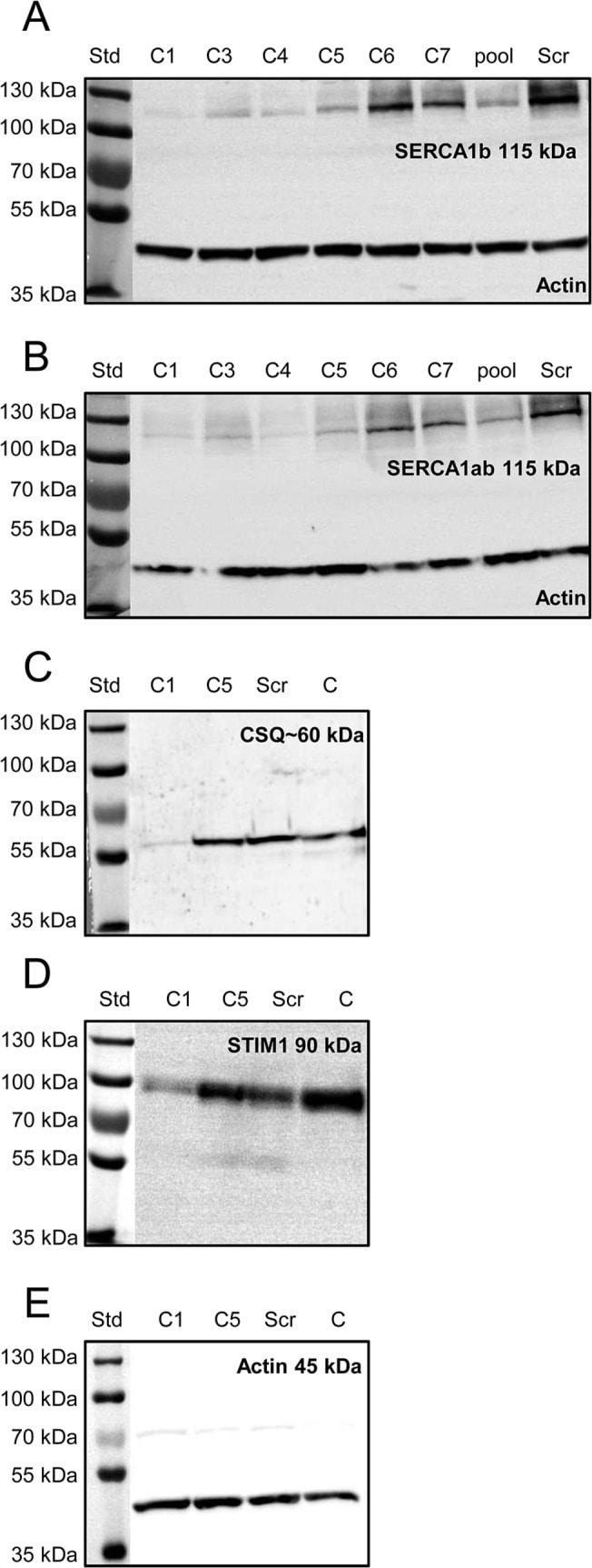 SERCA1 ATPase Antibody