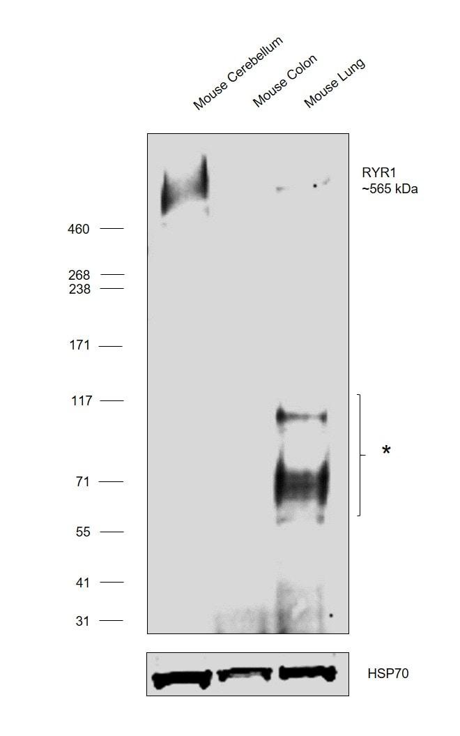 Ryanodine Receptor Antibody in Western Blot (WB)