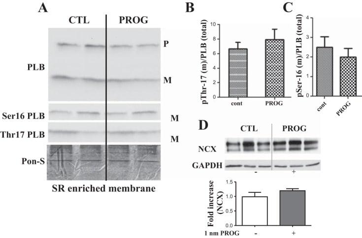 Phospholamban Antibody