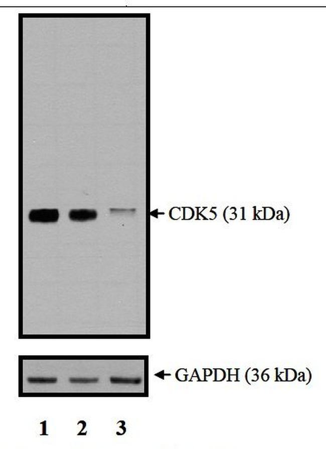 CDK5 Antibody in KnockDown (KD)