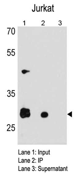 CDK5 Antibody in Immunoprecipitation (IP)