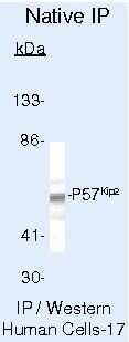 p57 Kip2 Antibody in Immunoprecipitation (IP)