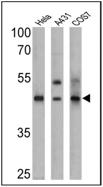 Cytokeratin 15 Antibody in Western Blot (WB)