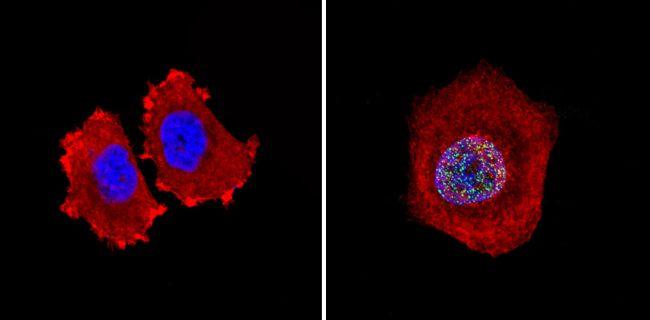 Rb Antibody in Immunofluorescence (IF)