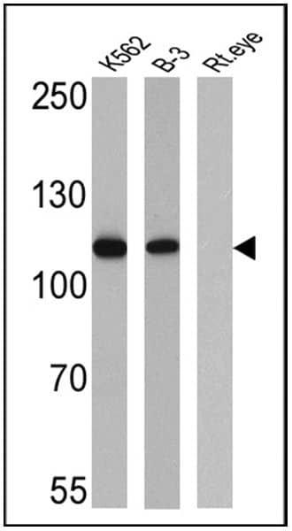 Rb Antibody in Western Blot (WB)