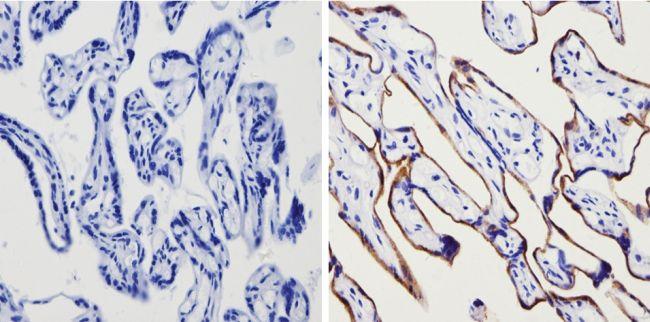 Transferrin Receptor Antibody in Immunohistochemistry (Paraffin) (IHC (P))