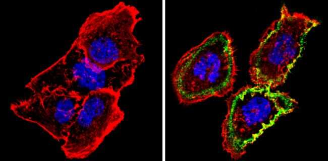 Thrombomodulin Antibody in Immunocytochemistry (ICC/IF)