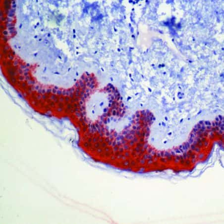 14-3-3 sigma Antibody in Immunohistochemistry (IHC)