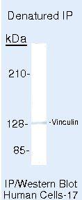 Vinculin Antibody in Immunoprecipitation (IP)