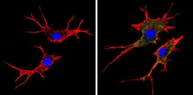 HLA-ABC Antibody in Immunofluorescence (IF)