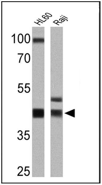 HLA-ABC Antibody in Western Blot (WB)