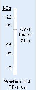 Factor XIII A Antibody in Western Blot (WB)