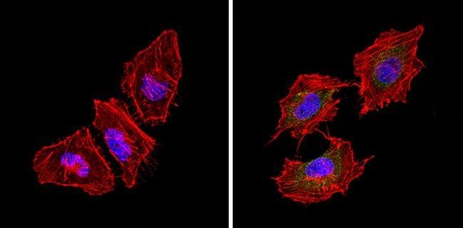 Bcl-2 Antibody in Immunofluorescence (IF)