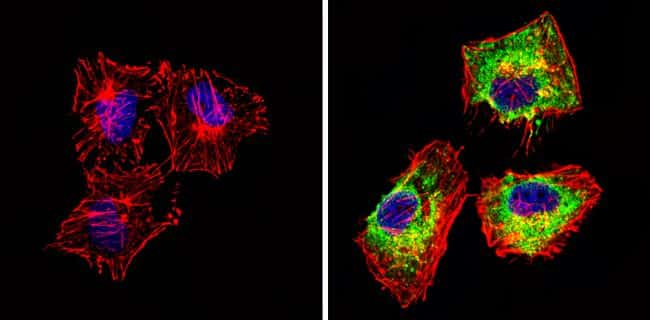 Actin Antibody in Immunofluorescence (IF)