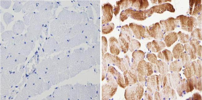 Actin Antibody in Immunohistochemistry (Paraffin) (IHC (P))