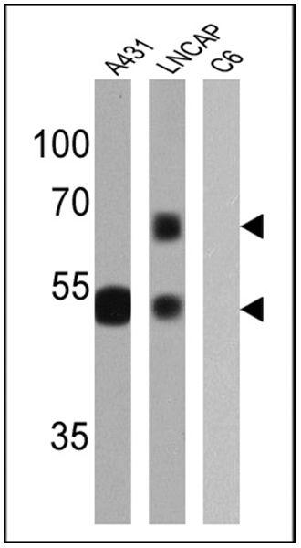 Cytokeratin HMW Antibody in Western Blot (WB)